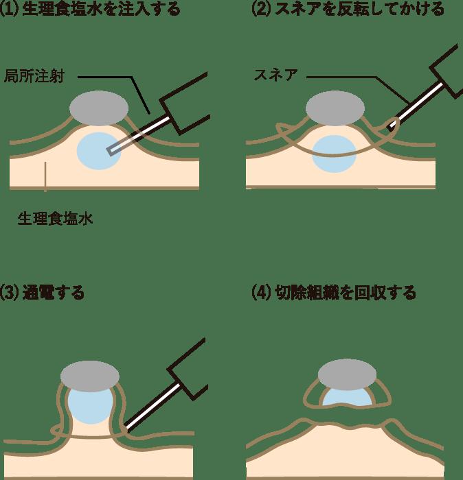 内視鏡的ポリープ切除の手順